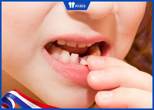 Cách xử lý khi Sót chân răng sau khi nhổ răng sữa nhưng không gây viêm