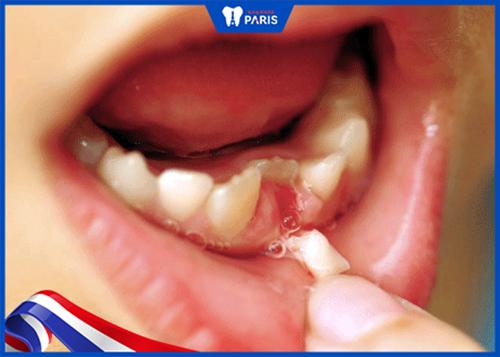 Dấu hiệu sót chân răng sau khi nhổ răng sữa
