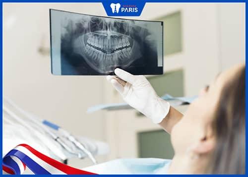 Kiểm tra & điều trị răng sâu trước khi hàn răng bằng composite