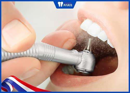 Làm sạch & khô khu vực răng trám trước khi hàn răng bằng composite