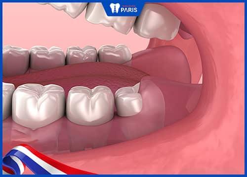 Nguyên nhân tại sao có người không mọc răng khôn?