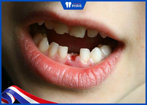 Nhổ răng sữa còn sót chân răng là do nguyên nhân gì?
