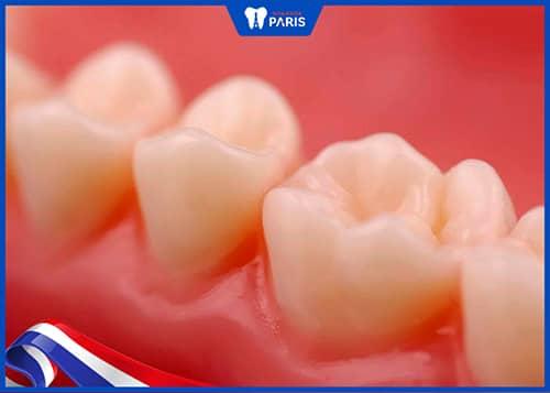 Nhược điểm khi hàn răng với Composite