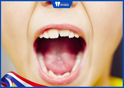 Răng khôn biến mất theo quá trình tiến hóa của con người