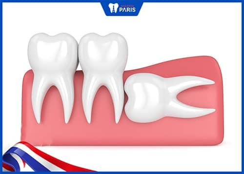 Trường hợp răng khôn không mọc