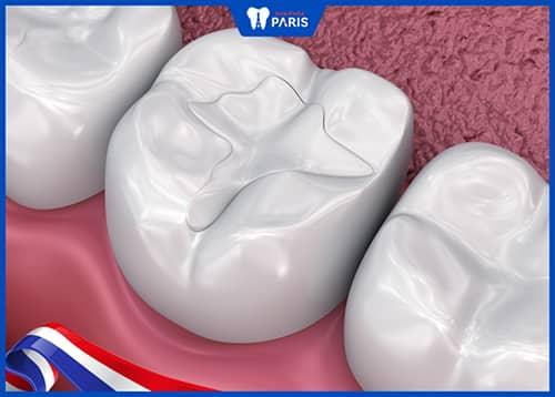Trám răng Composite là gì?