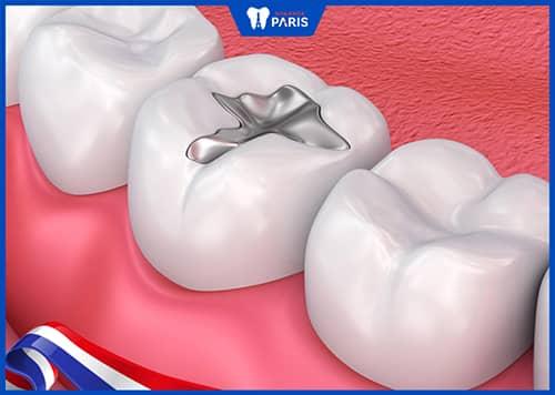 Trám răng bằng Composite So với Amalgam