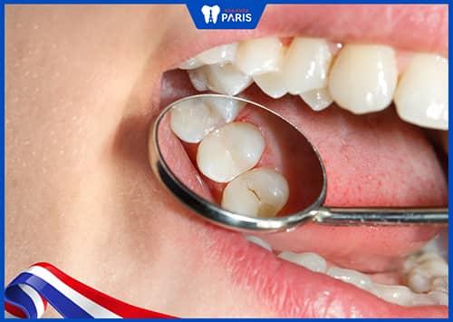 Ưu điểm khi dùng vật liệu Composite trám răng
