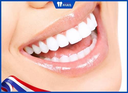 Răng bọc răng sứ