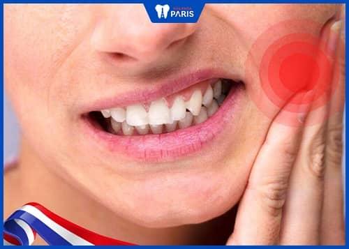 Bệnh lý răng miệng là nguyên nhân gây rụng răng