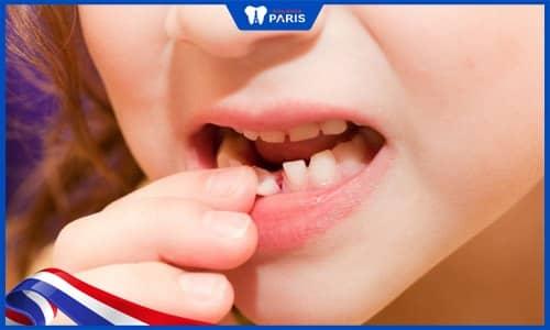 Các cấp độ lung lay răng