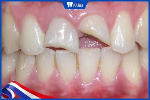 răng cửa bị gãy có mọc lại không