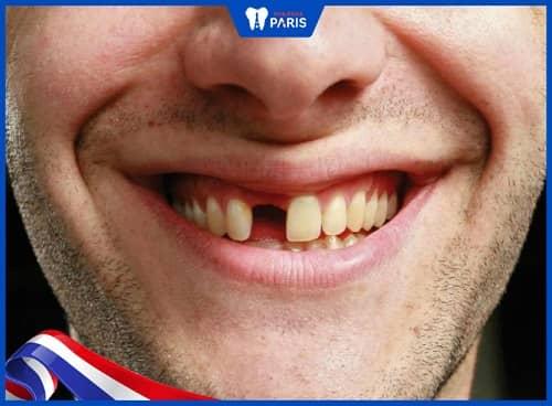 Cách khắc phục răng rụng còn chân