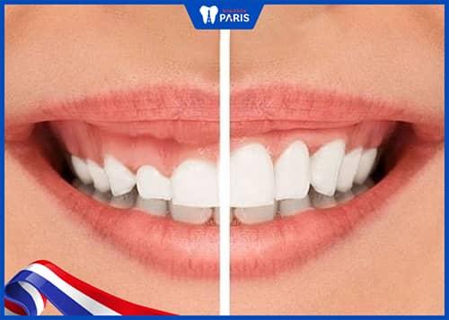Cắt lợi là gì? Cắt nướu răng để làm gì?