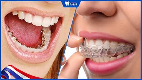 Nẹp răng đằng sau so với khí cụ niềng trong suốt