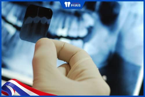 Chụp tia X-Quang cho bà bầu chước khia trị viêm tủy răng