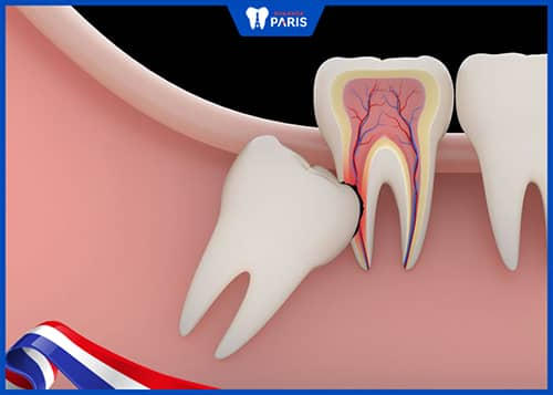 Liệu có ai hoàn toàn không có răng khôn không?