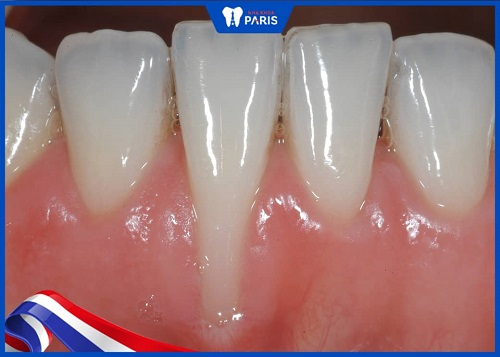Những dấu hiệu khi bị tụt lợi do niềng răng