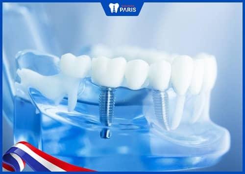 Cấy Implant để khắc phục răng bị gẫy gần hết