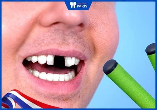 Rụng răng có điềm gì trong tướng số, phong thủy