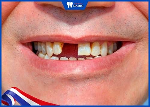 Răng rụng rồi có mọc lại không