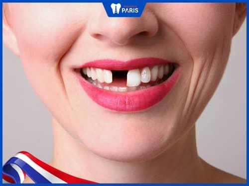Rụng răng do va đập mạnh