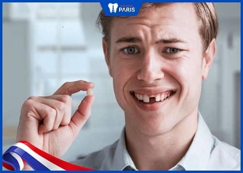 Gãy răng cửa đánh con gì
