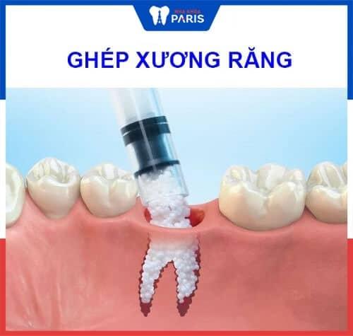 Ghép xương để giữ răng lung lay