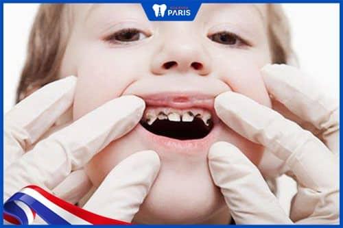 Hạn chế bệnh lý răng miệng
