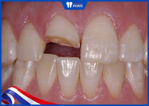 Khi nào nên lấy tủy răng
