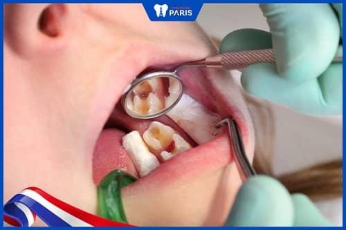 Lấy tủy răng cho trẻ