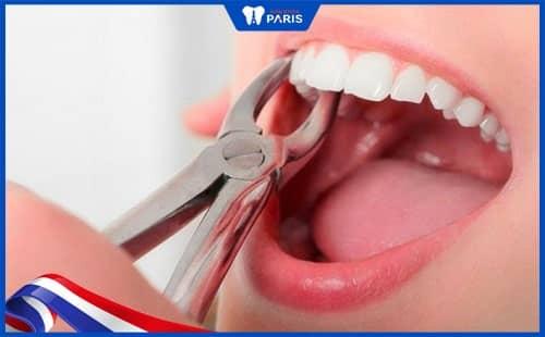 Nhổ răng lung lay khi răng bị tổn thương nặng