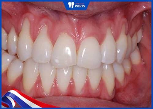Niềng răng có làm tụt lợi không?