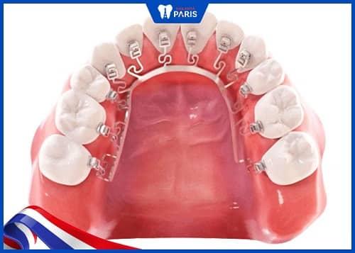 niềng răng phía sau brius