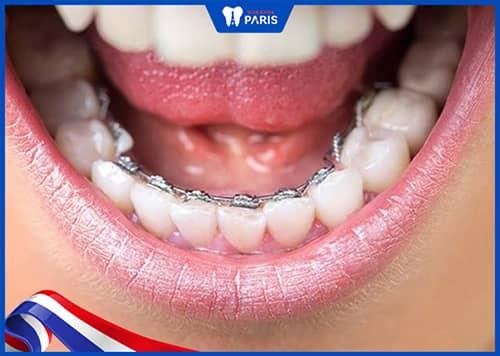 Niềng răng mặt trong (mặt lưỡi) là gì?