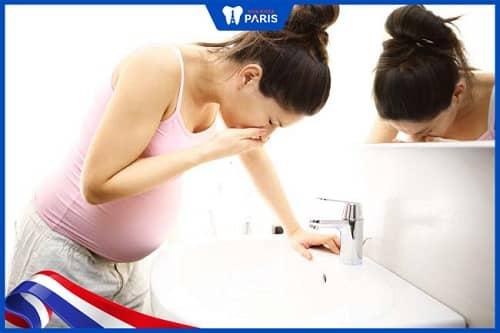 Nôn nghén khi mang bầu là nguyên nhân gây viêm tủy răng