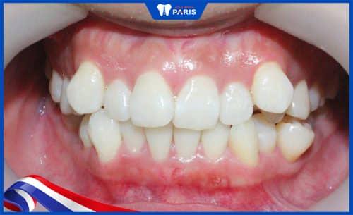 Răng mọc không đúng vị trí