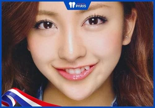 Nguyên nhân răng mọc không đều