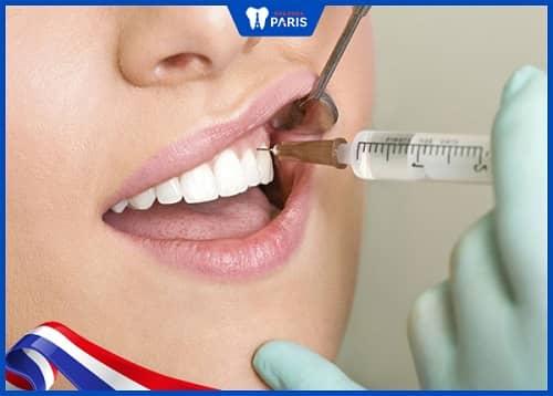 Sử dụng thuốc gây tê, gây mê cho bà bầu chước khi trị viêm tủy răng