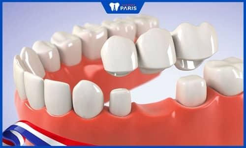 Làm cầu răng xử lý răng gãy gần hết