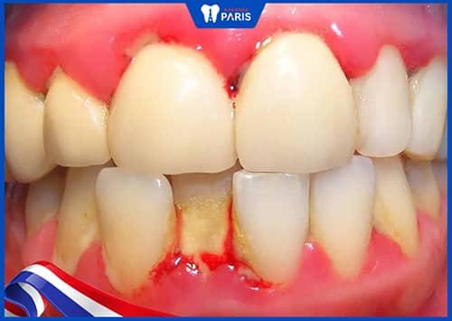 sưng lợi răng hàm do nướu bị nhiễm khuẩn
