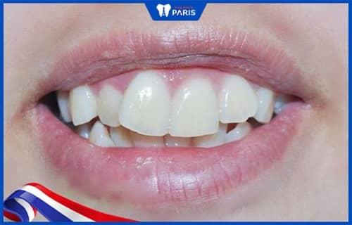 Tổn thương răng khiến răng lung lay