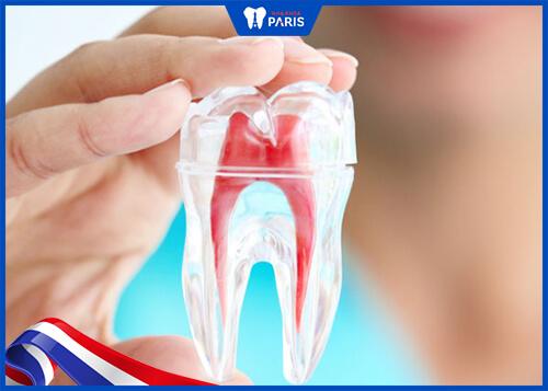 Trám răng có cần lấy tủy và có đau hay không