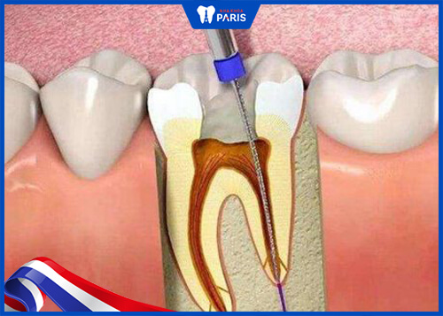 Trường hợp trám răng cần lấy tủy