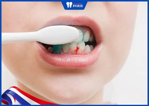 Bị tụt lợi khi niềng răng do cách vệ sinh răng miệng