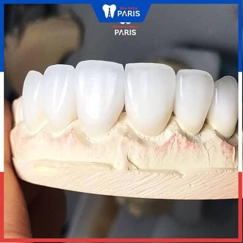 ưu nhược điểm của răng sứ lava