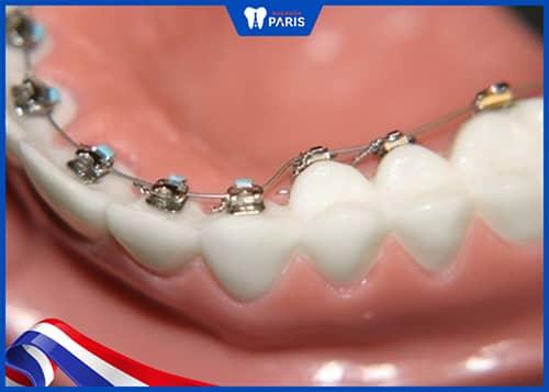 Niềng răng mặt có chất liệu tốt