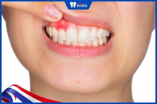 Bệnh nha chu khiến răng lung lay