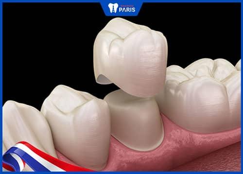 Bọc răng sứ khi xỉa răng bị thưa răng