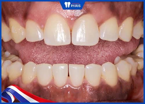 Cắt kẽ răng có đau không